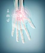 手部x光医学科技