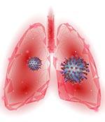 肺部病毒元素